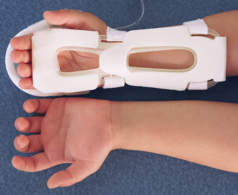 Touch, Look, Compare with the TLC Wrist Splint