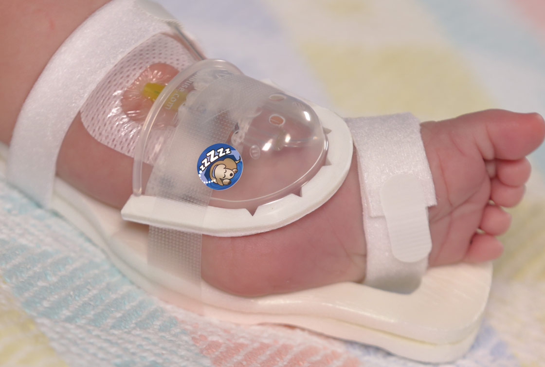 I.V. House 727SFP UltraDome in infant's foot