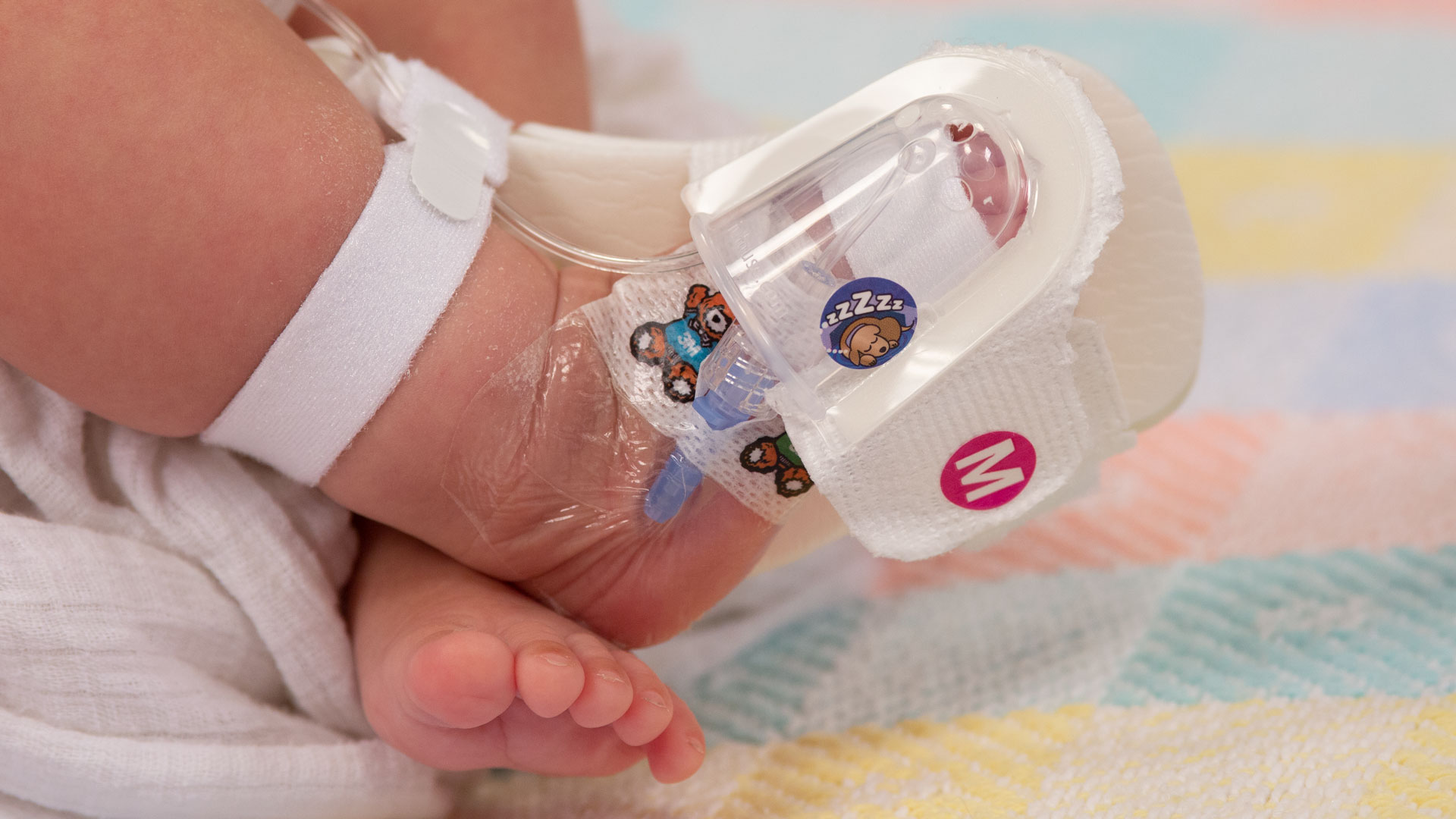949S TLC Foot Splint and 330M I.V. House ultraDressing on Infant's foot