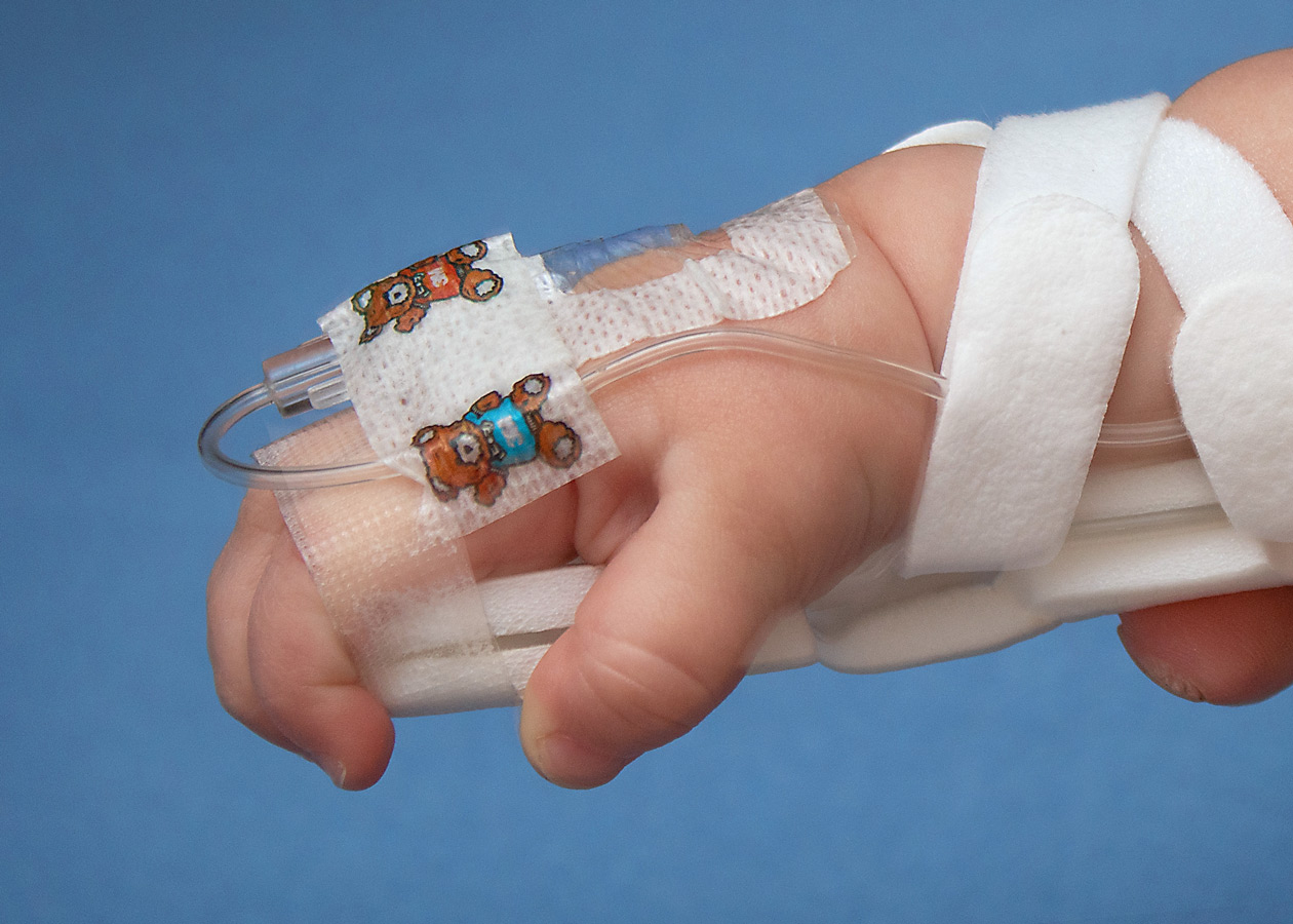 Tape at fingers secures TLC Wrist Splint for infants and toddlers