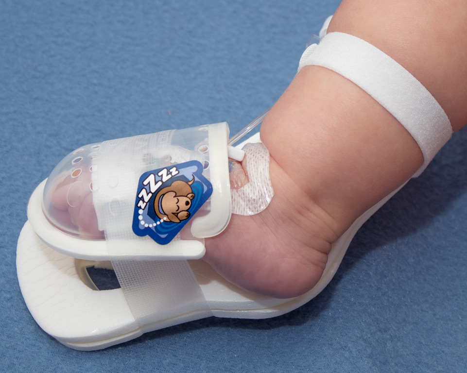 TLC Foot splint with UltraDome