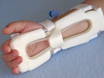 939M-Ultra TLC Wrist Splint on toddler's wrist