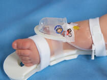 727SFP I.V. House UltraDome on infant's ankle