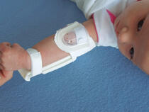 959XS-Ultra TLC Elbow Splint on infant's elbow