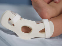 949S TLC Foot Splint on infant