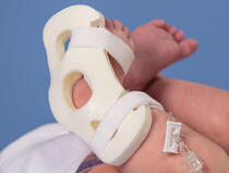 949XS TLC Foot Splint on infant