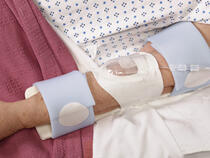 959XL-Ultra TLC Elbow Splint with 730Arm I.V. House UltraDressing on adult's elbow
