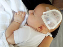 750LFP I.V. House UltraDome on infant's scalp