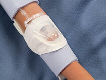 959XL-Ultra TLC Elbow Splint with 730Arm I.V. House UltraDressing on youth